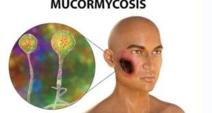تعريف داء الفطر الاسود او ال mucormycose